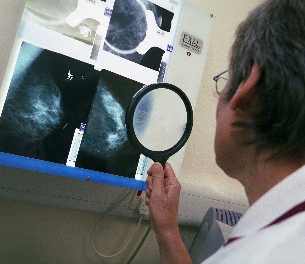 A lump isn't the only sign of breast cancer